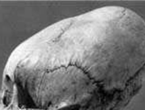 고대시절 세계적으로 존재했던 괴상한 성형풍습.jpg