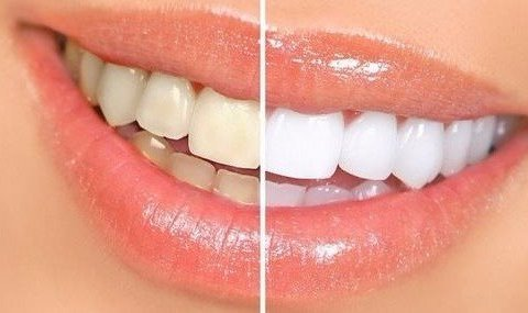 치아미백이 된다? 면봉의 놀라운 활용법 8가지