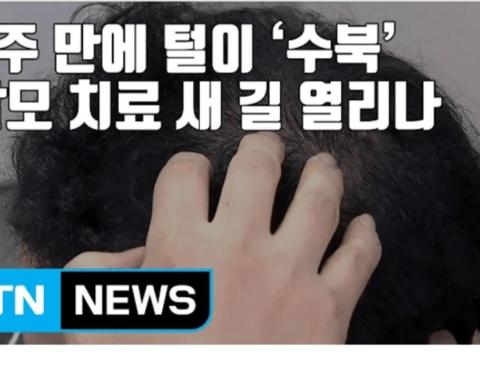 탈모인들에게 희소식.news